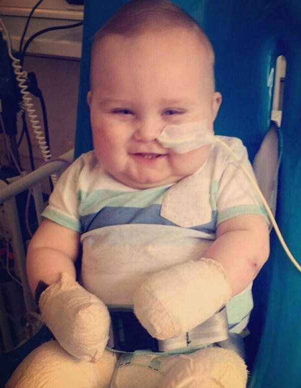 英国11月大宝宝因病截肢 微笑与命运抗争