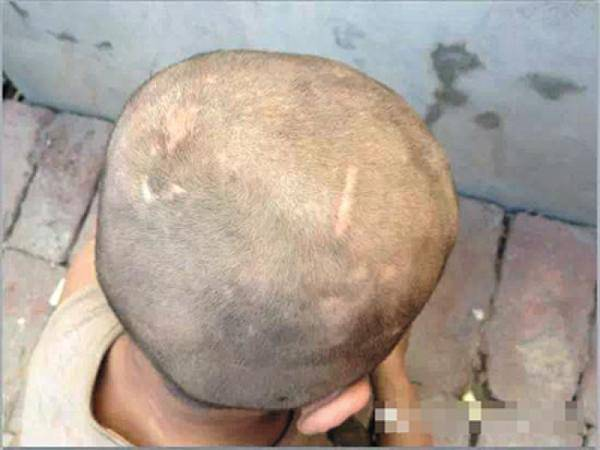 濮阳7岁男童满身伤疤与猪同住